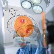 SPECYFIKA DIAGNOZY NEUROPSYCHOLOGICZNEJ W KLINICE NEUROCHIRURGII