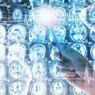 SPECYFIKA DIAGNOZY NEUROPSYCHOLOGICZNEJ W KLINICE NEUROLOGII